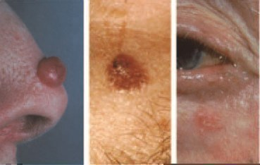 White Spot Skin Cancer On Nose