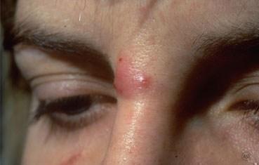 Rosacea Symptoms, Treatment, Prevention of Rosacea ... - WebMD