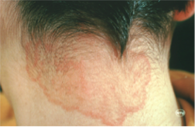Ringworm on Scalp: Home Remedies, Treatments & Pictures